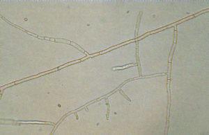 Imagen de hifa de Rhizoctonia