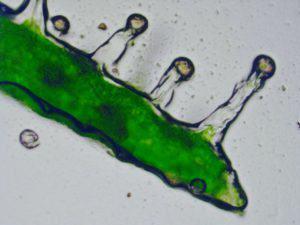 Tricomas glandulares vistos con microscopio