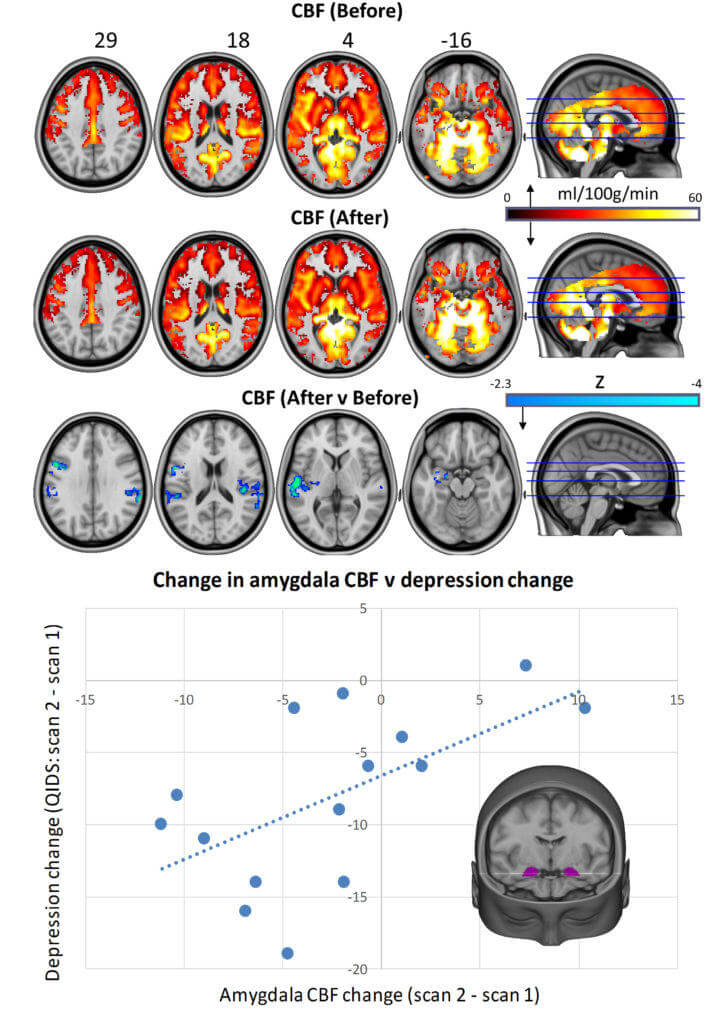 Psilocybin alters brain activity, and is very helpful for treating depression