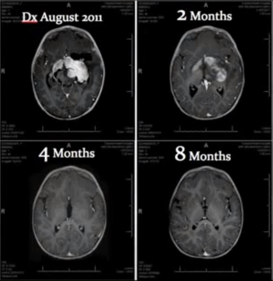 Oli de Rick Simpson i tumor cerebral