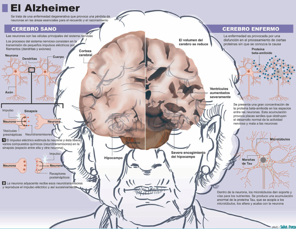 El cervell i Alzheimer