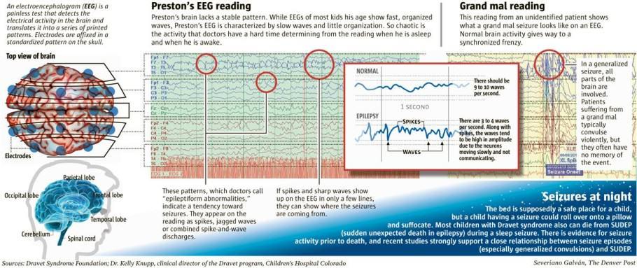 Algunes formes greus d'epilèpsia afectant els nens des del seu més tendra edat