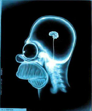Un consum excessiu pot danyar el teu cervell