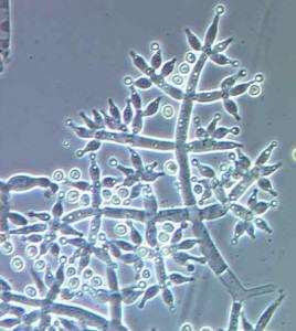 Trichoderma Harzianum (beneficial fungus)