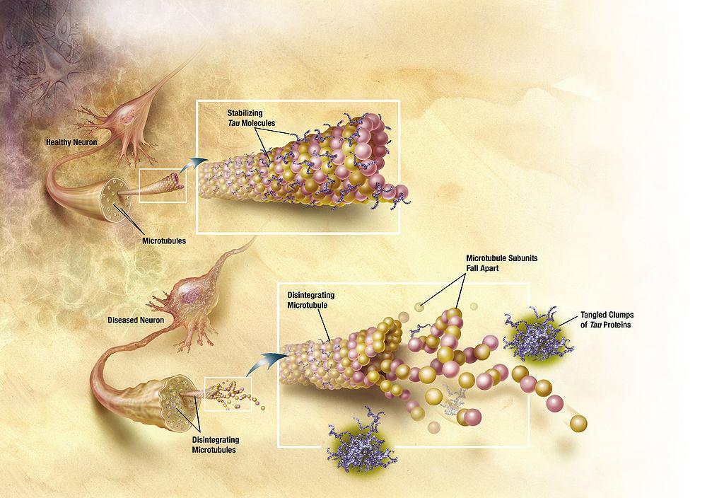 Alzheimer's disease damages brain cells