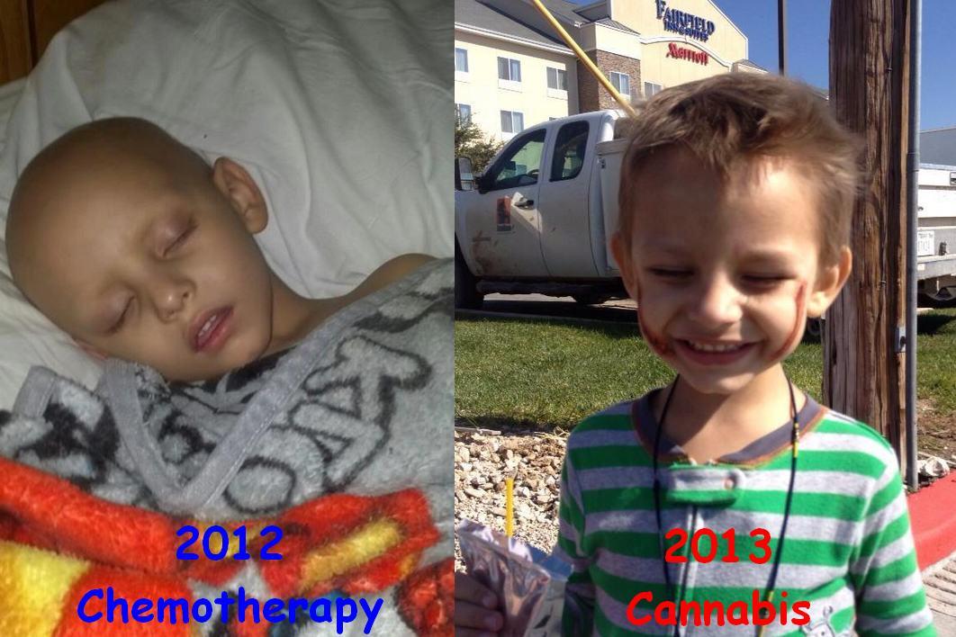 Le petit Landon Riddle, 3 ans, atteint de leucémie, se soigne maintenant avec le cannabis