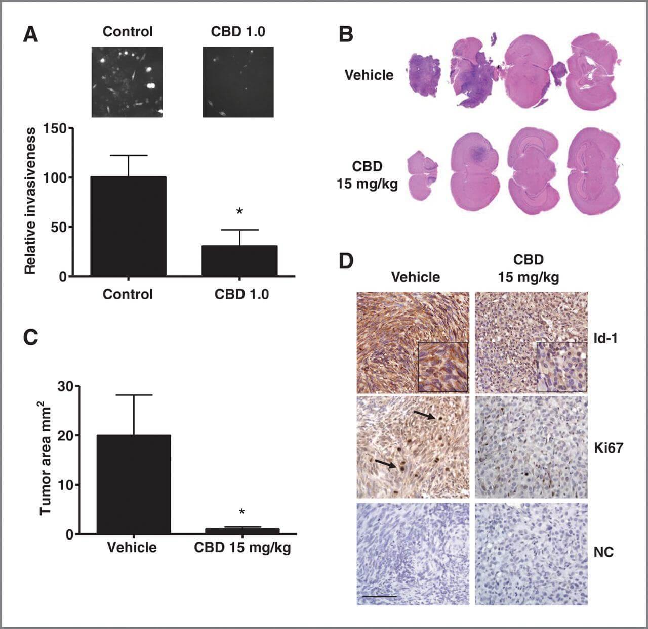 Le Cannabidiol est un nouveau traitement approuvé contre le Glioblastome