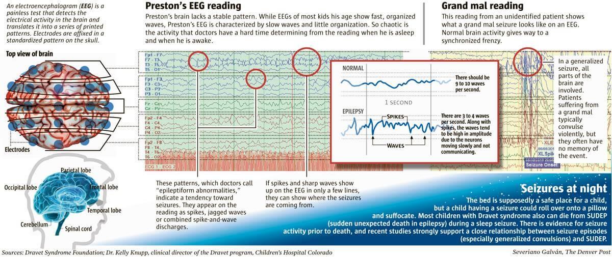 Certaines formes graves d'épilepsie touchent les enfants dès leur plus jeune âge.