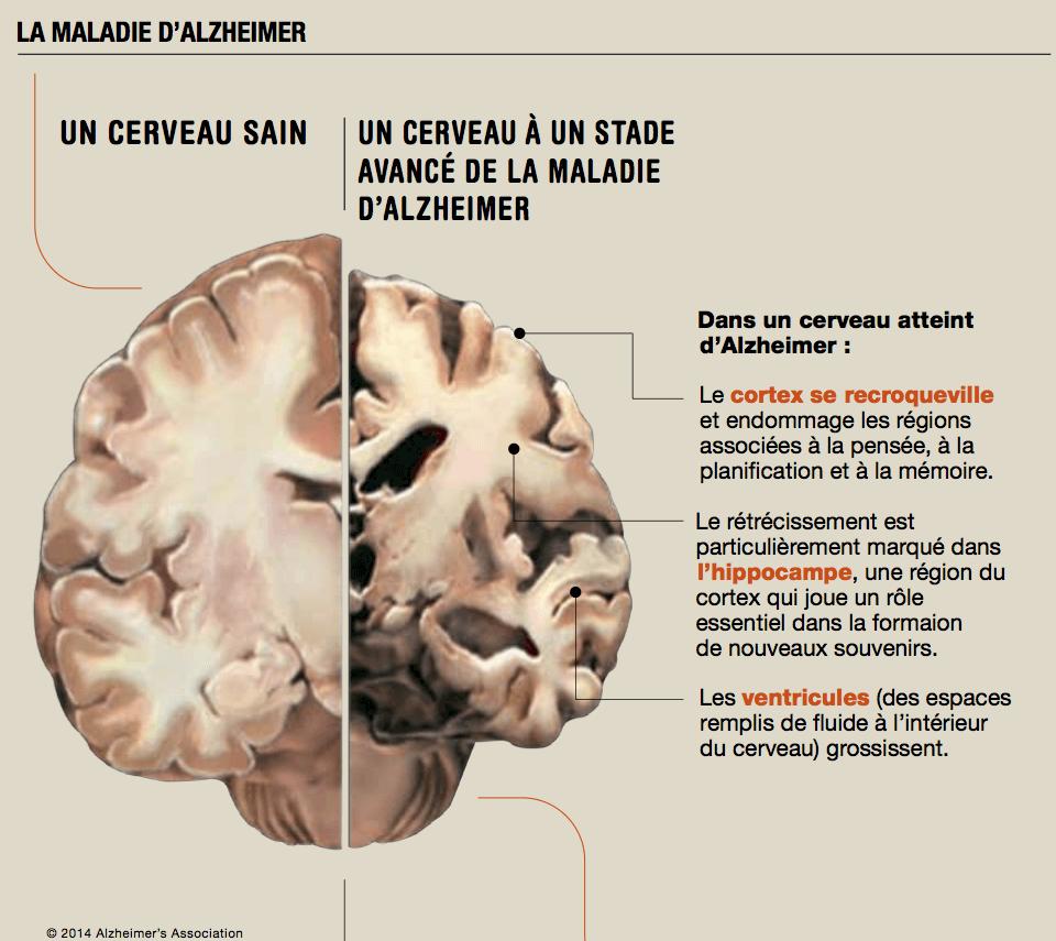 La maladie d'Alzheimer touche plus de 30 millions de personnes dans le monde